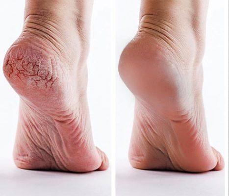 feet paraffin treatment